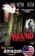 Wound Amazon Us